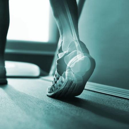 Sports Physiotherapist